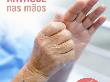 Artrose nas mãos
