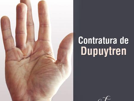 Contratura de Dupuytren