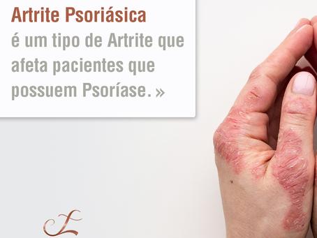 Artrite Psoriásica é um tipo de Artrite que afeta pacientes que possuem Psoríase.