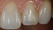 Poorly bonded & Shaped composite