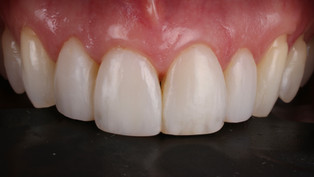 Delicate removal of old composite and rebonding