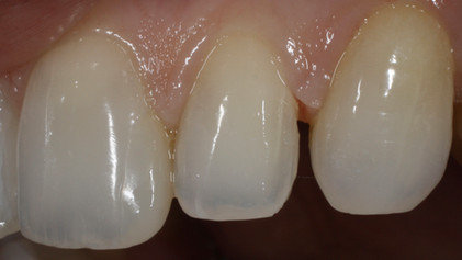 Composite removed without damaging enamel