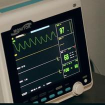 EKG Findings