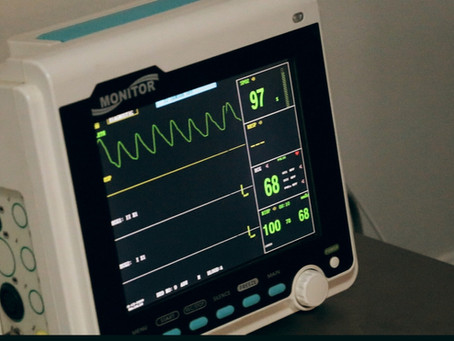 All we Need to Know about ECG Machines