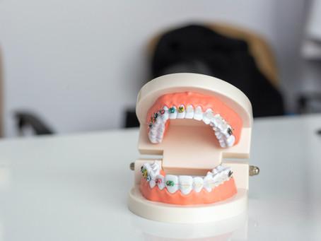 Meine Zahn-Transformation Update