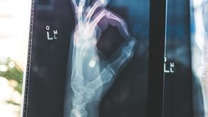 Home Remedies Arthritis
