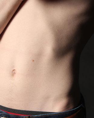 cutera non-invasive body sculpting lower abs