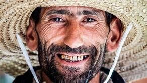 Zorlu Diş Renklenmeleri ile Nasıl Başa Çıkılır?