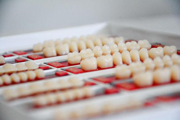 dental crowns dentist in Warren, NJ