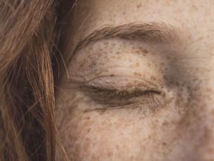 Pigmentation: How to Lighten Spots & Discolouration