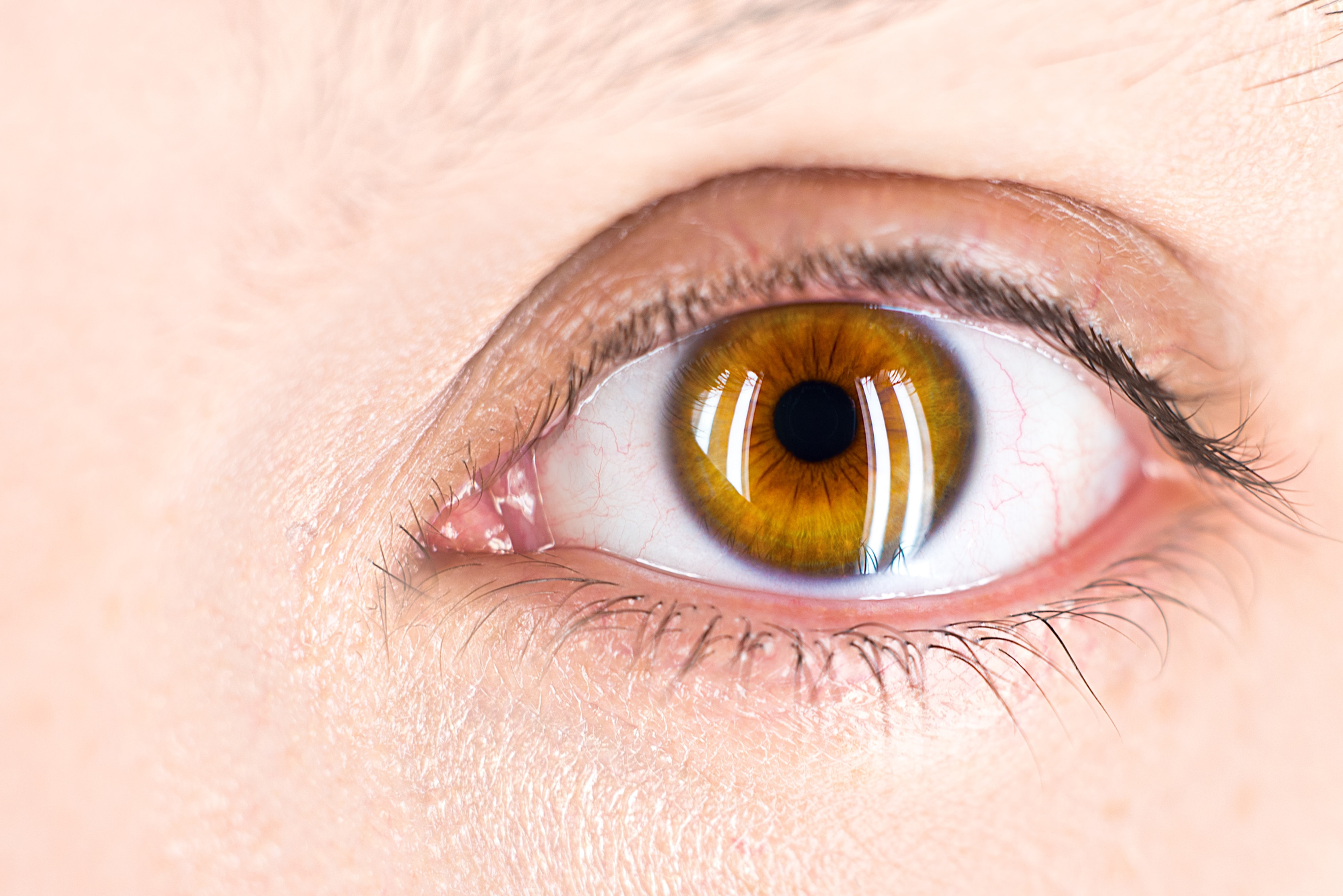 Valoración Integral de Retina