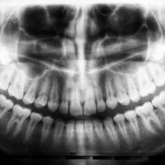 Tonsils and adenoids