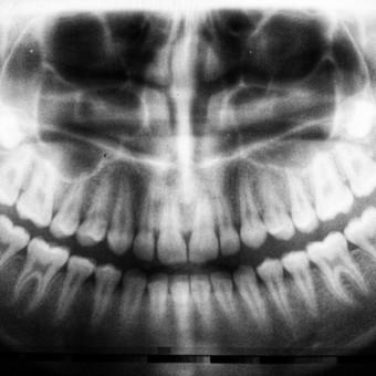 Radiology Case 3