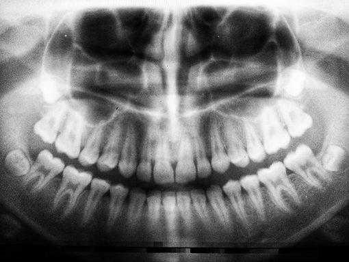 dental x-ray dentist in Warren, NJ