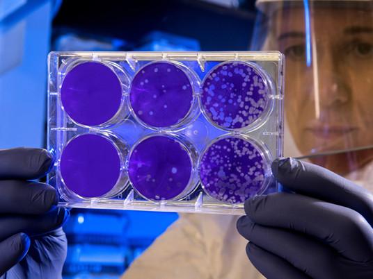 Quanto tempo o coronavírus fica viável em superfícies?
