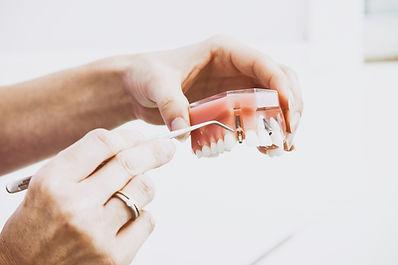 implanty bielsko-biała