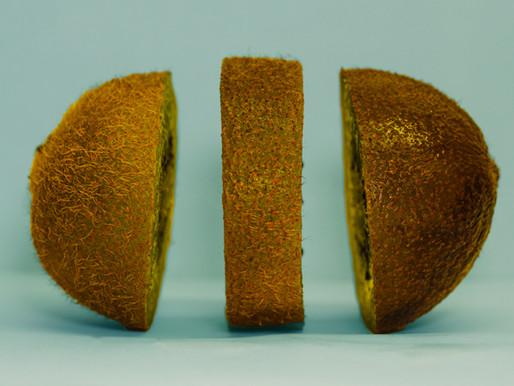 Kiwi: o fruto rico em vitamina C que facilita a digestão e retarda o envelhecimento da pele