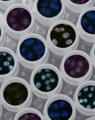 Engineered immune cells enhance patients' ability to fight tumours