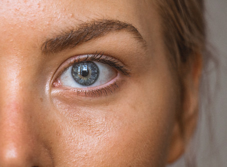 Leave those dark under eye circles for the past