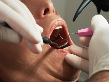 Ask a Dentist: Do you really need a teeth cleaning every 6 months?
