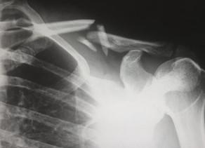 Trauma and Orthopaedics