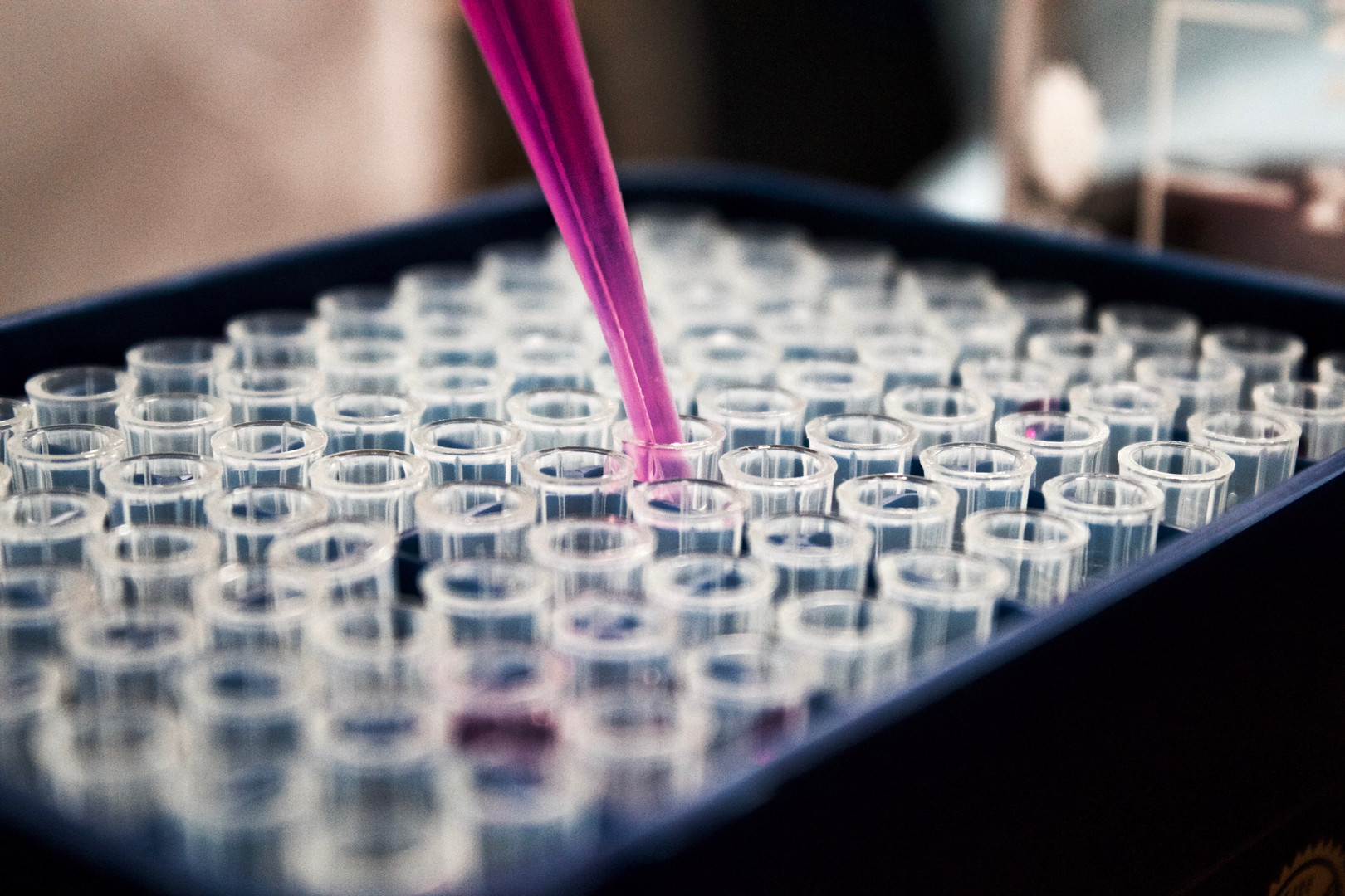 Pipetting. Credit: Louis Reed