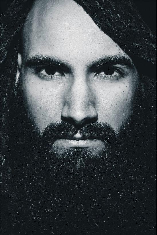 beard and mustache transplant process