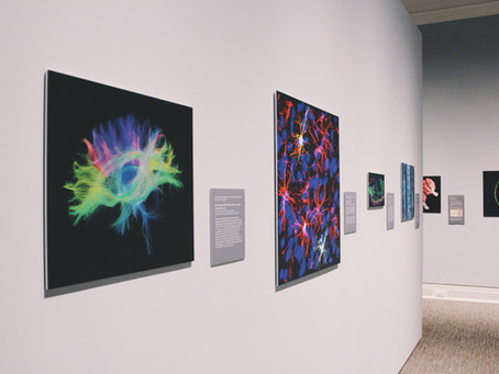 Deep Learning and Neurology