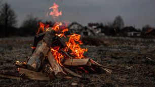 How To File Burn Injury Claims In California?