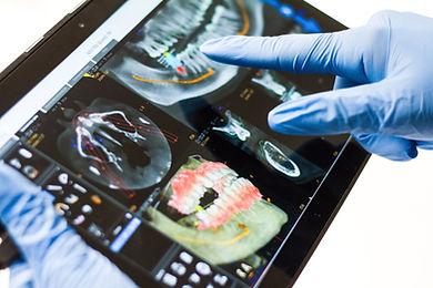 Dental implants Hereford 3D digital planning