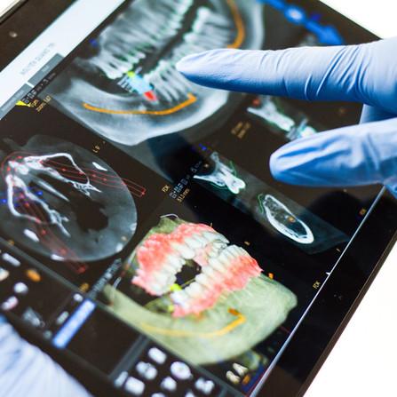 Impianti ortopedici e dentali in titanio: sfide odierne e prospettive future