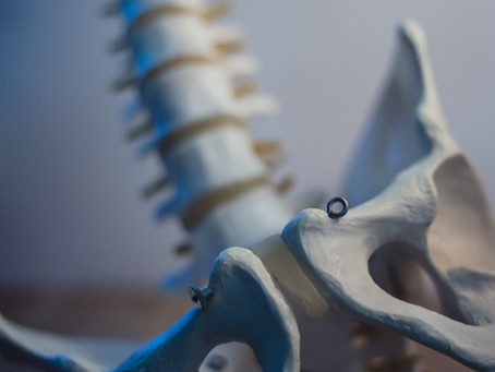 Get headaches? Have you had your coccyx checked?!