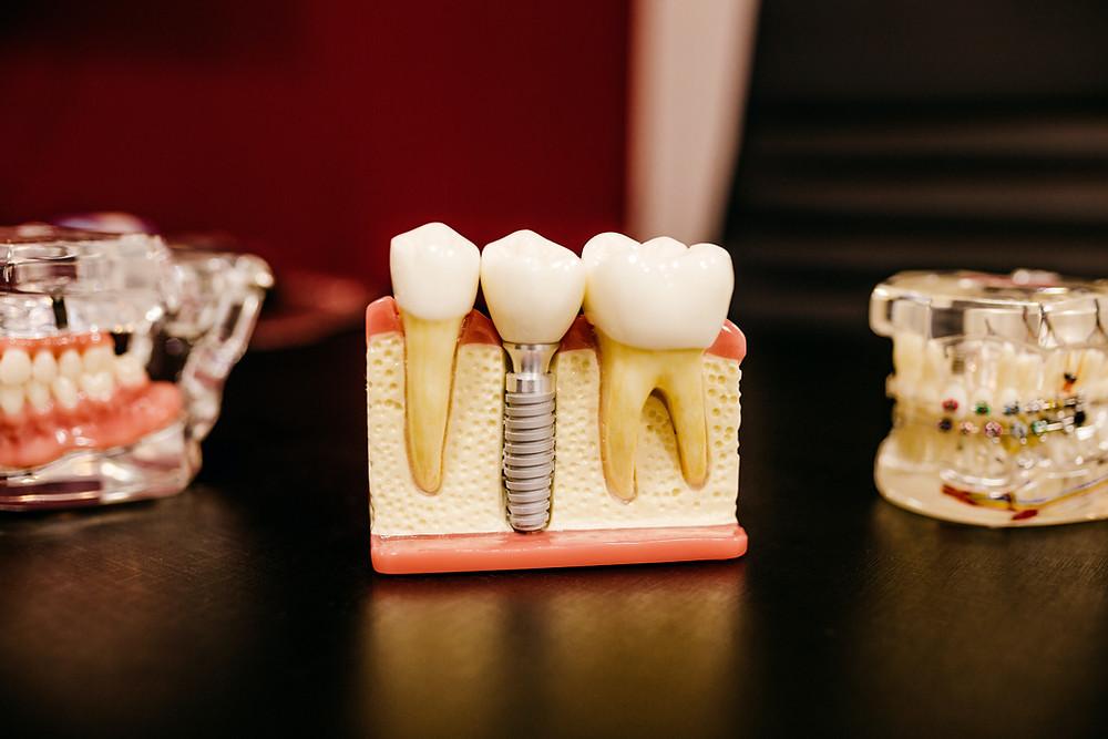 dental implants, warren dentist, the star dental group