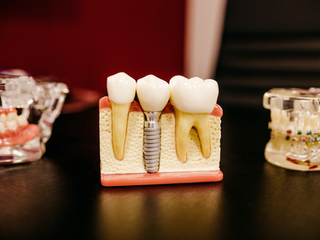 Dental Implants Global Market in 2020