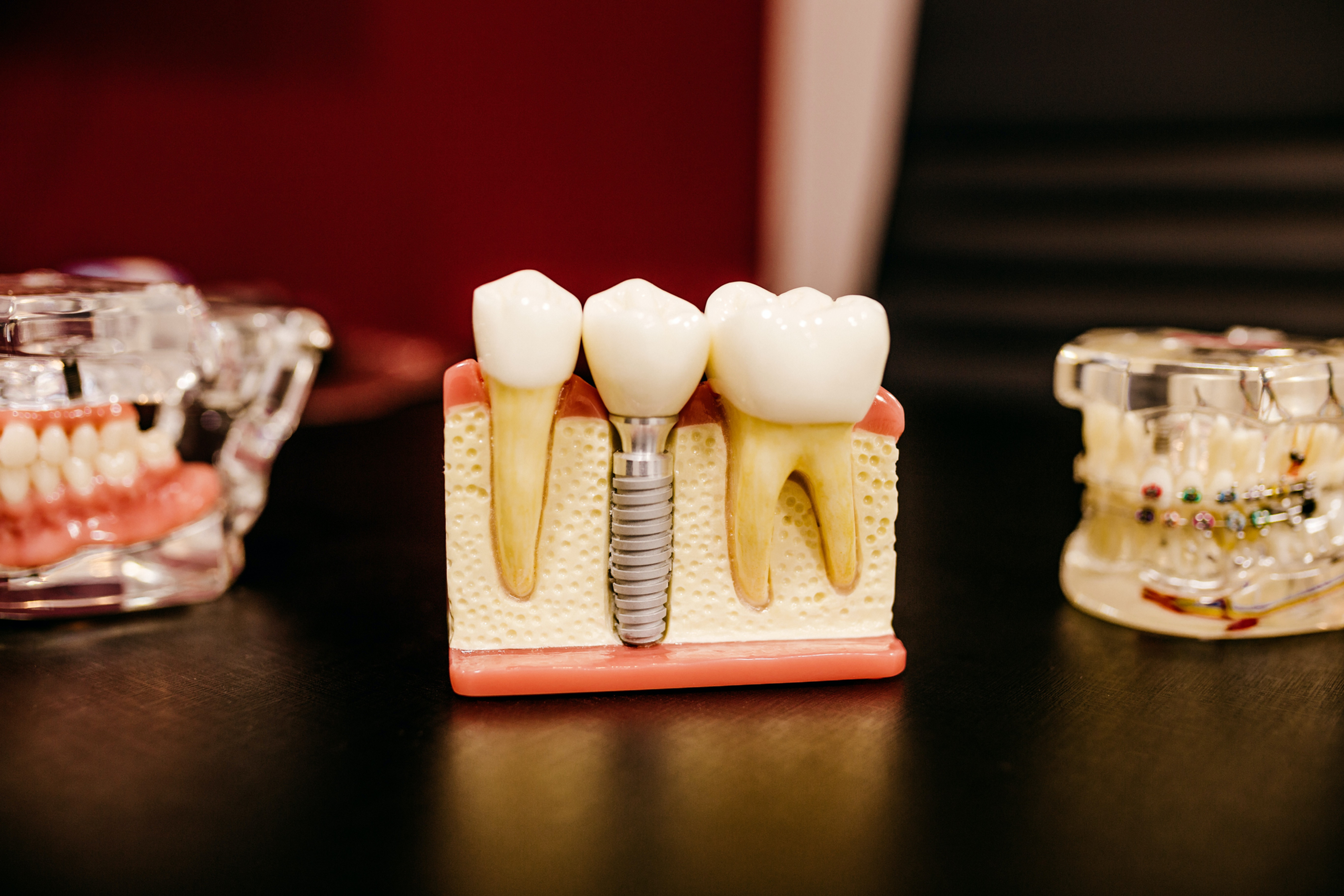 Root canal treatment (3 canals)