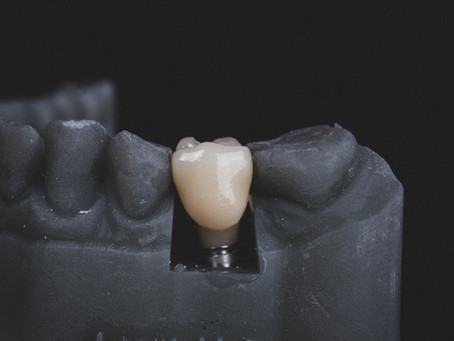 Ask a Dentist: How many teeth can a dental implant hold?