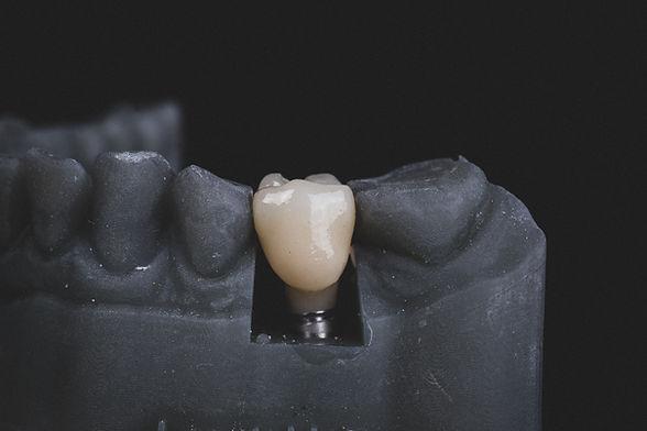 dental implant warren dentist