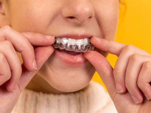 What You Need to Know About Crowded Teeth and Clear Plaque Treatment