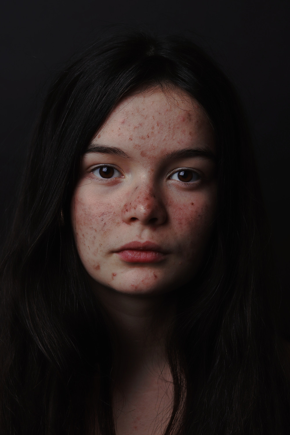 Young woman with acne scars and pimples